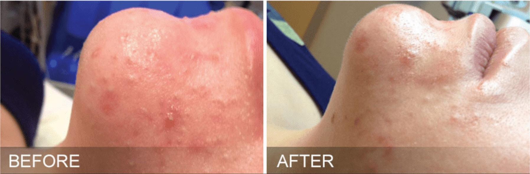 HydraFacial acne results