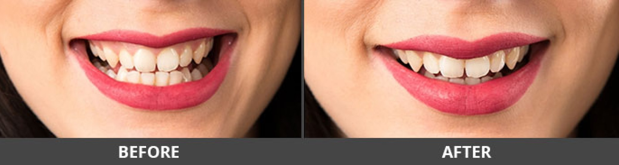 Gummy smile treatment results