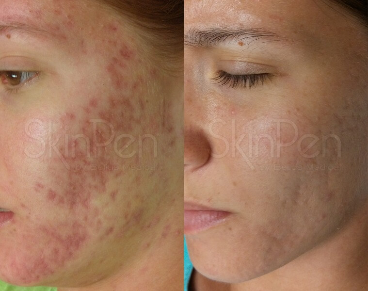 Microneedling Pen before and after