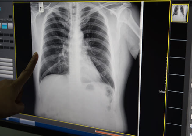 X-Ray of the lungs