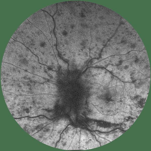 Retinal Vein Occlusion (BRVO and CRVO)