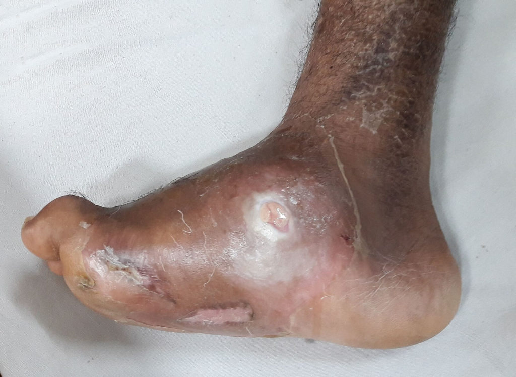 siren-socks-charcot-foot