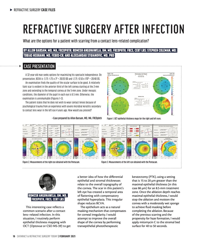 Refractive Surgery After Infection