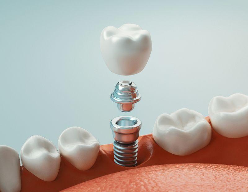 a dental implant