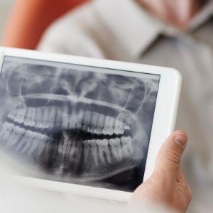 Dental exam and X-ray