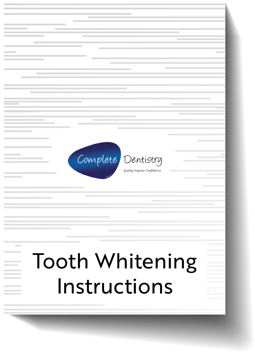 Tooth Whitening Instructions