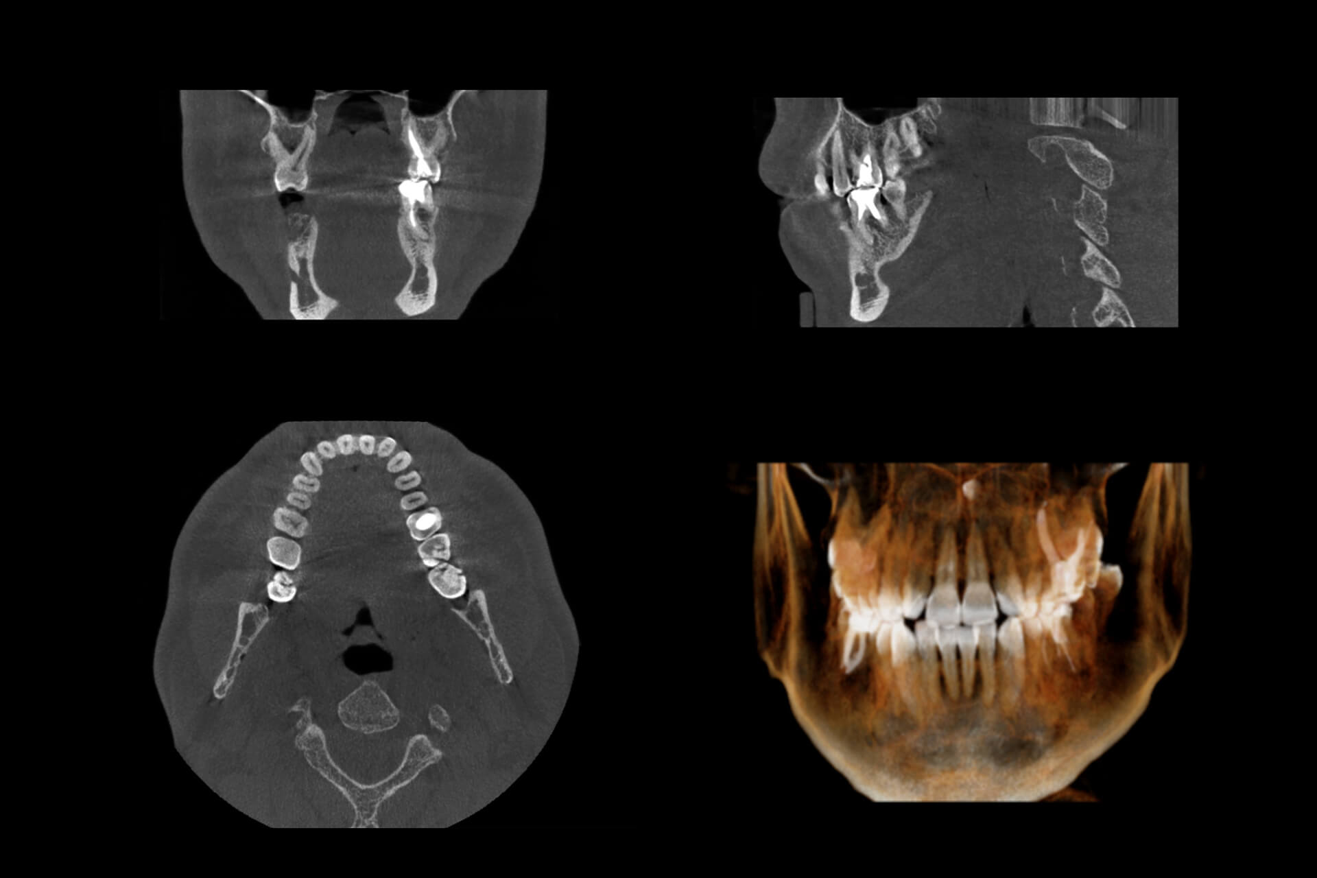 Cone Beam CT Scan