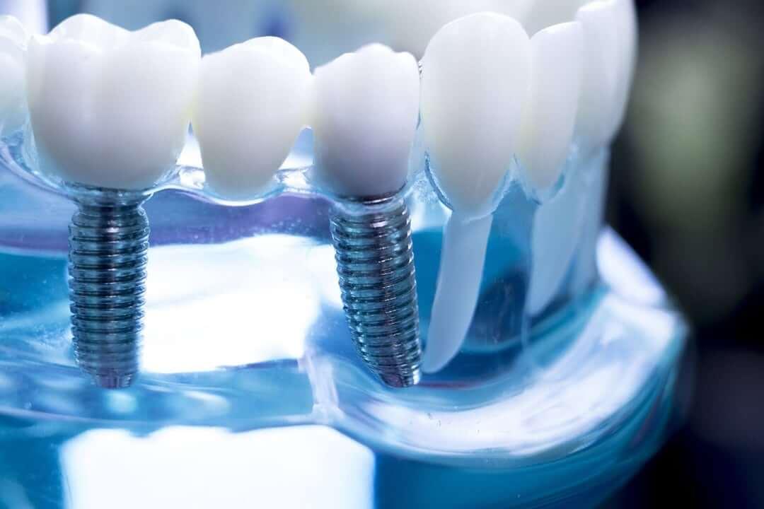 dental implants in st augustine