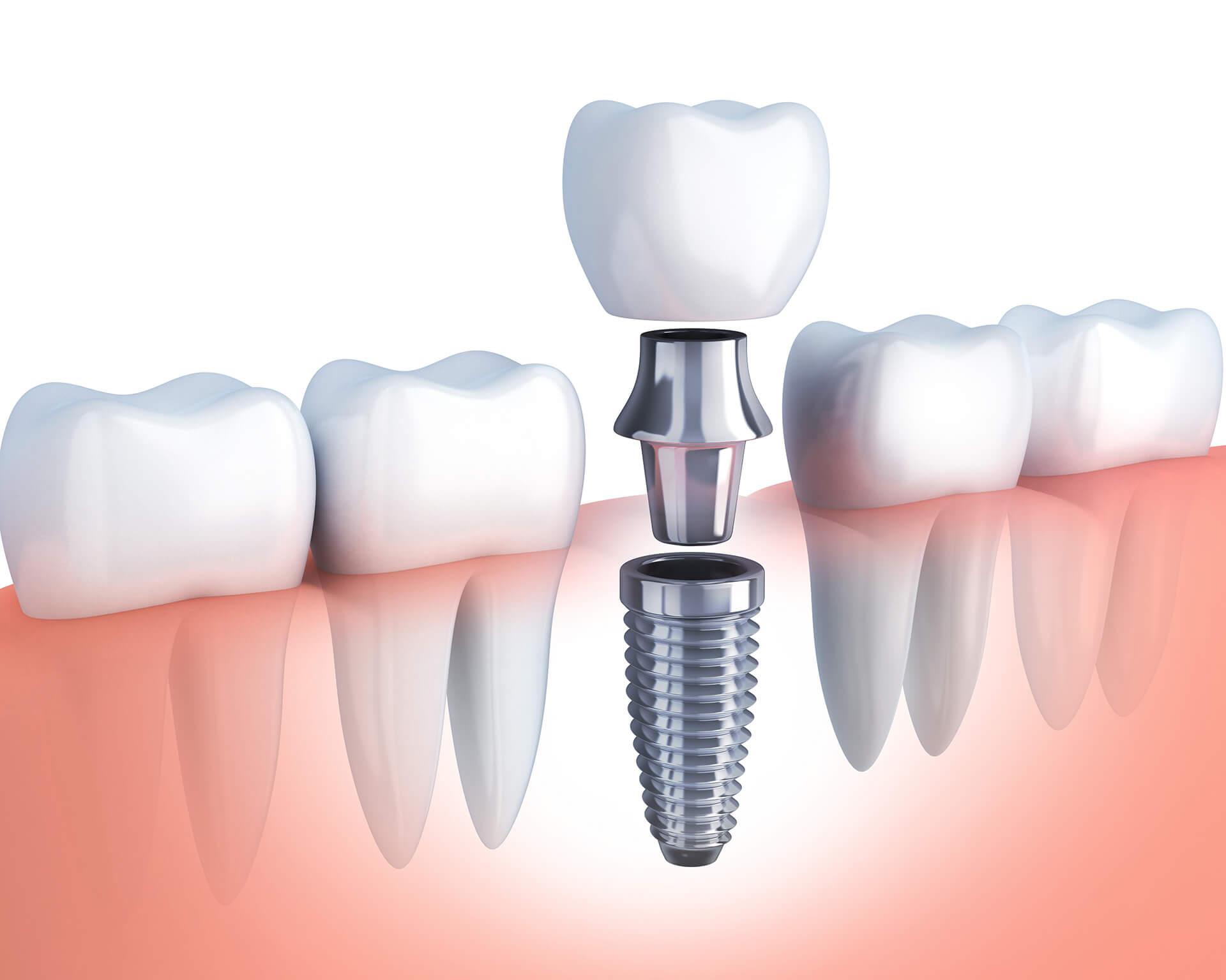 single tooth implants st augustine