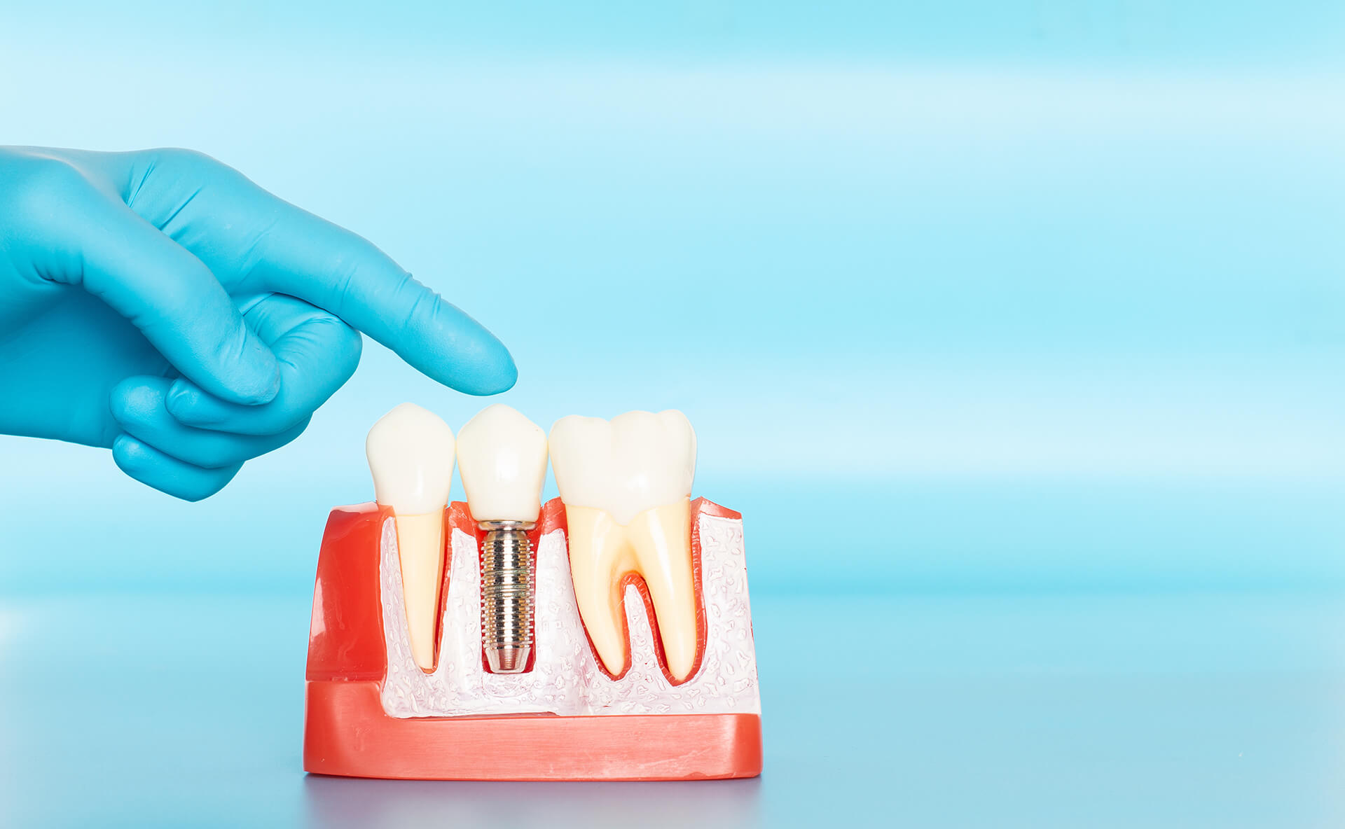 single tooth implants in st augustine
