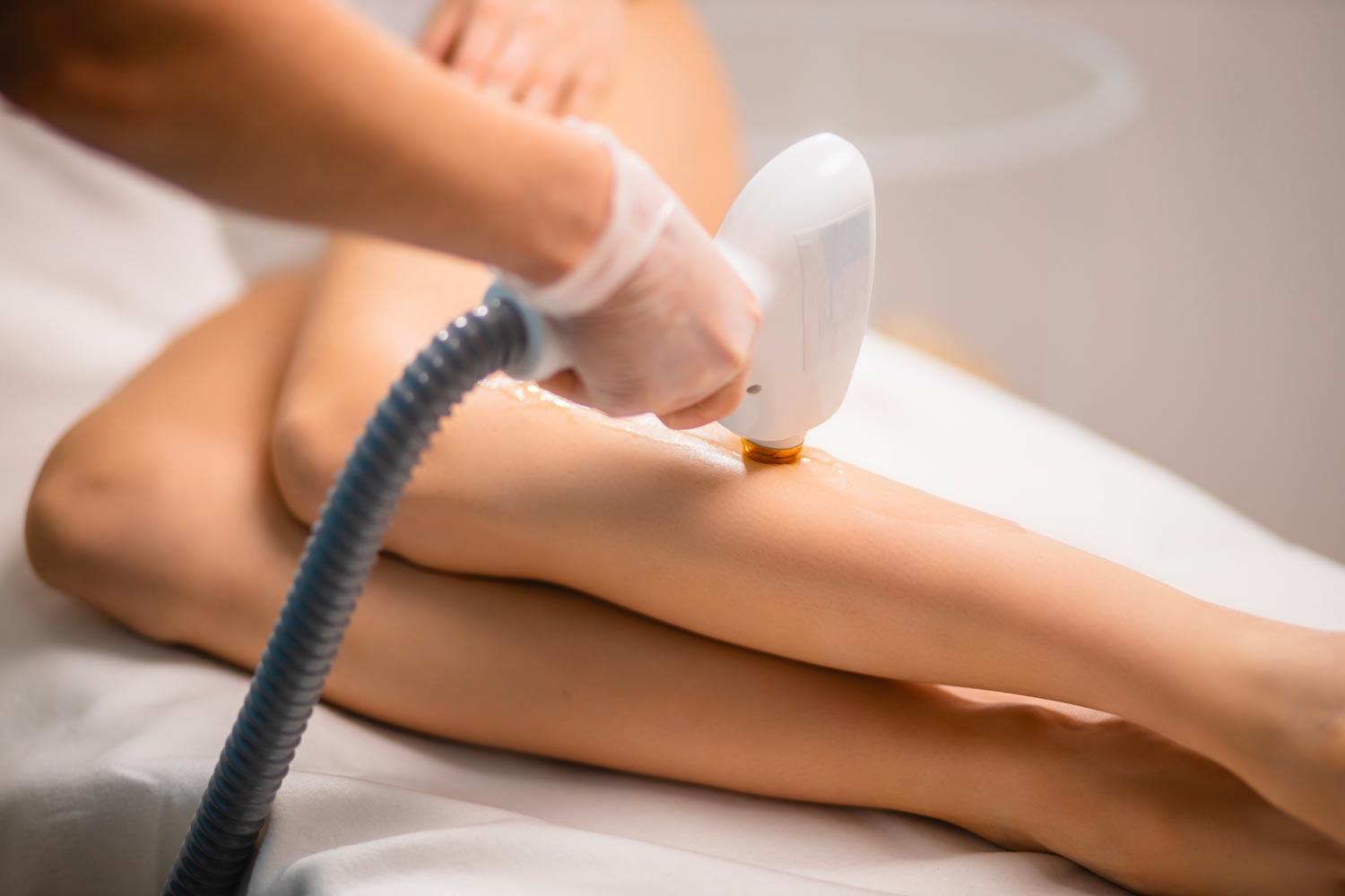 Laser hair reduction technique on the legs of a client in Chandler.