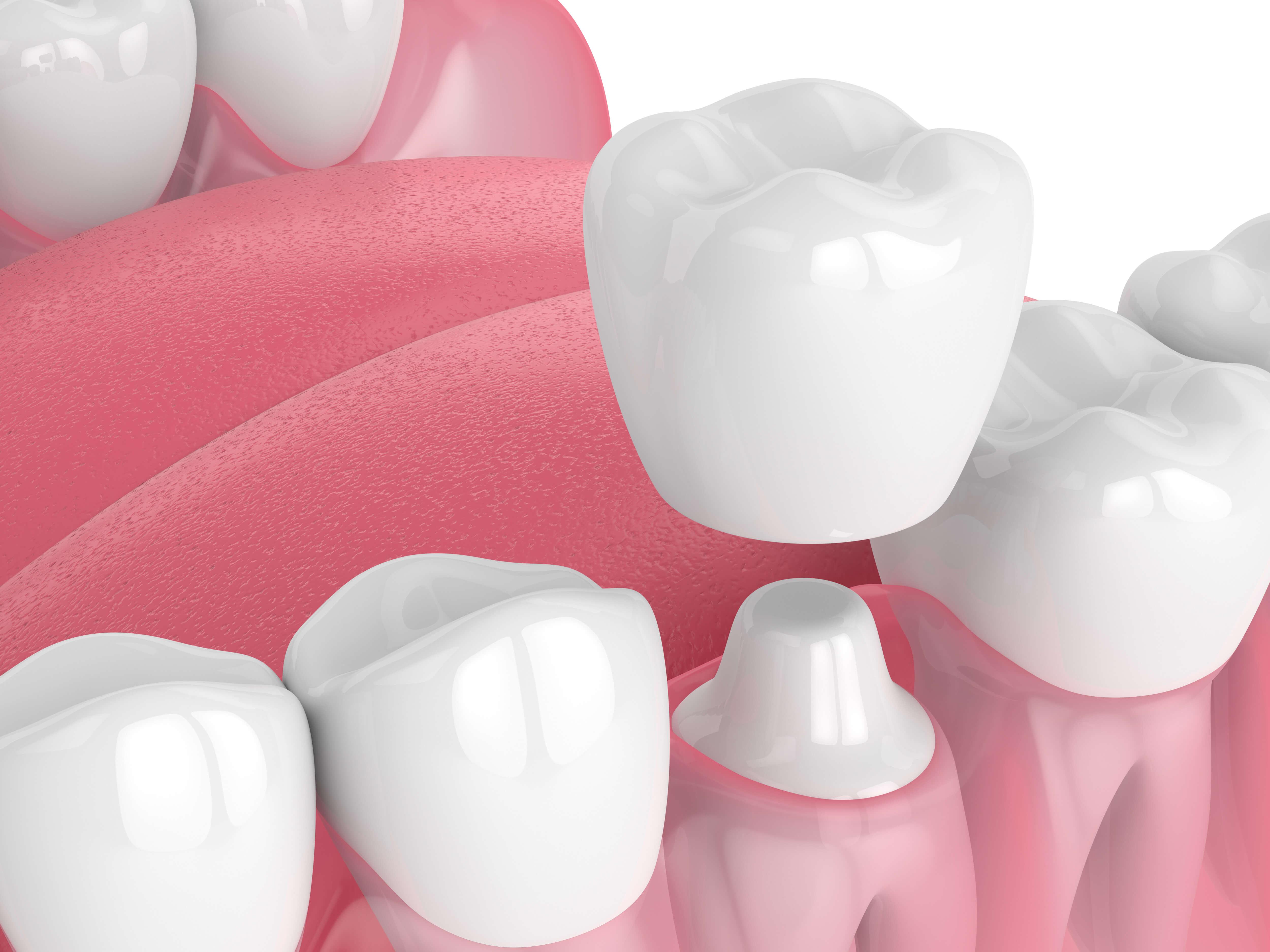 Dental Crowns Glendive MT
