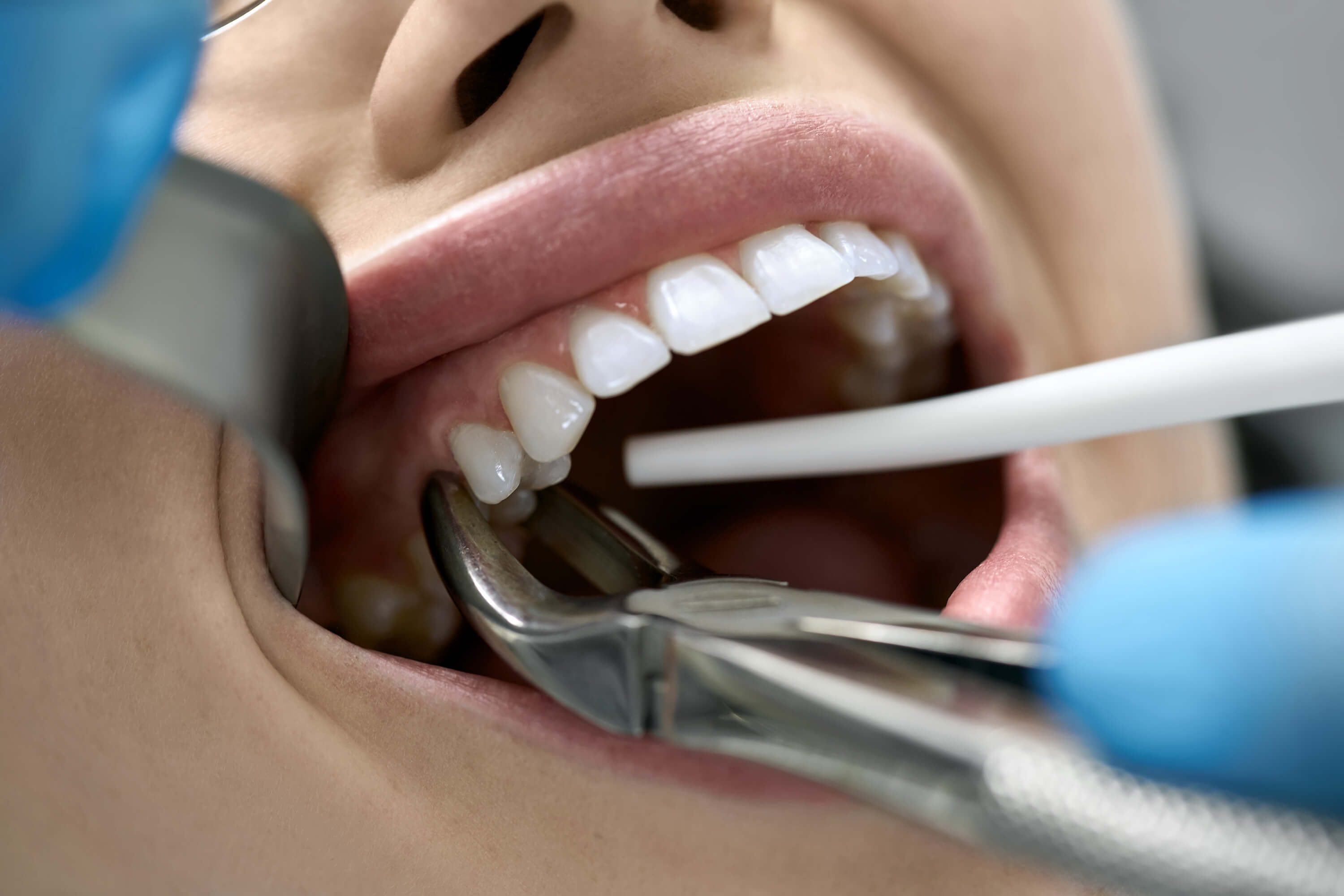 What happens during a Tooth Extraction