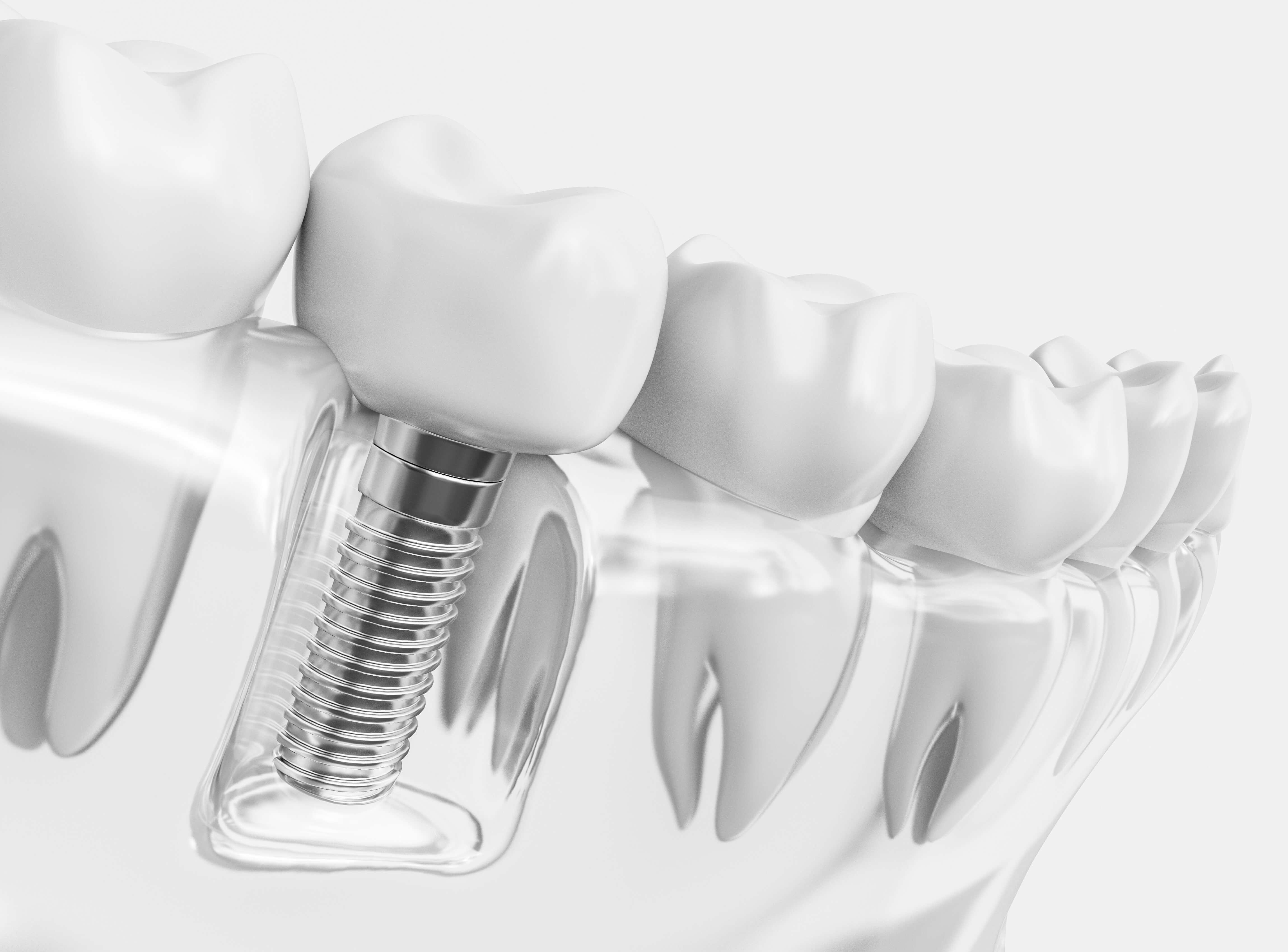 Single Tooth Implant Glendive MT