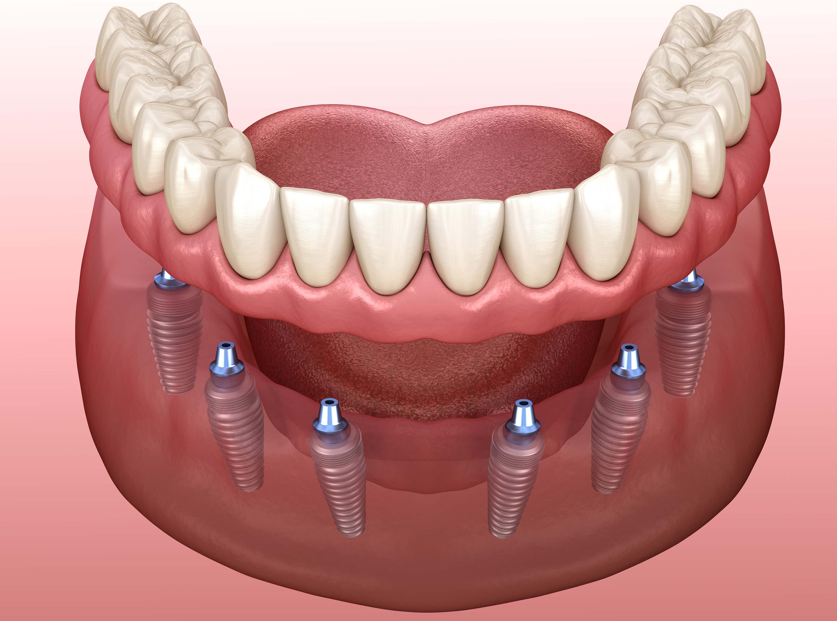 Implant Supported Dentures Glendive MT