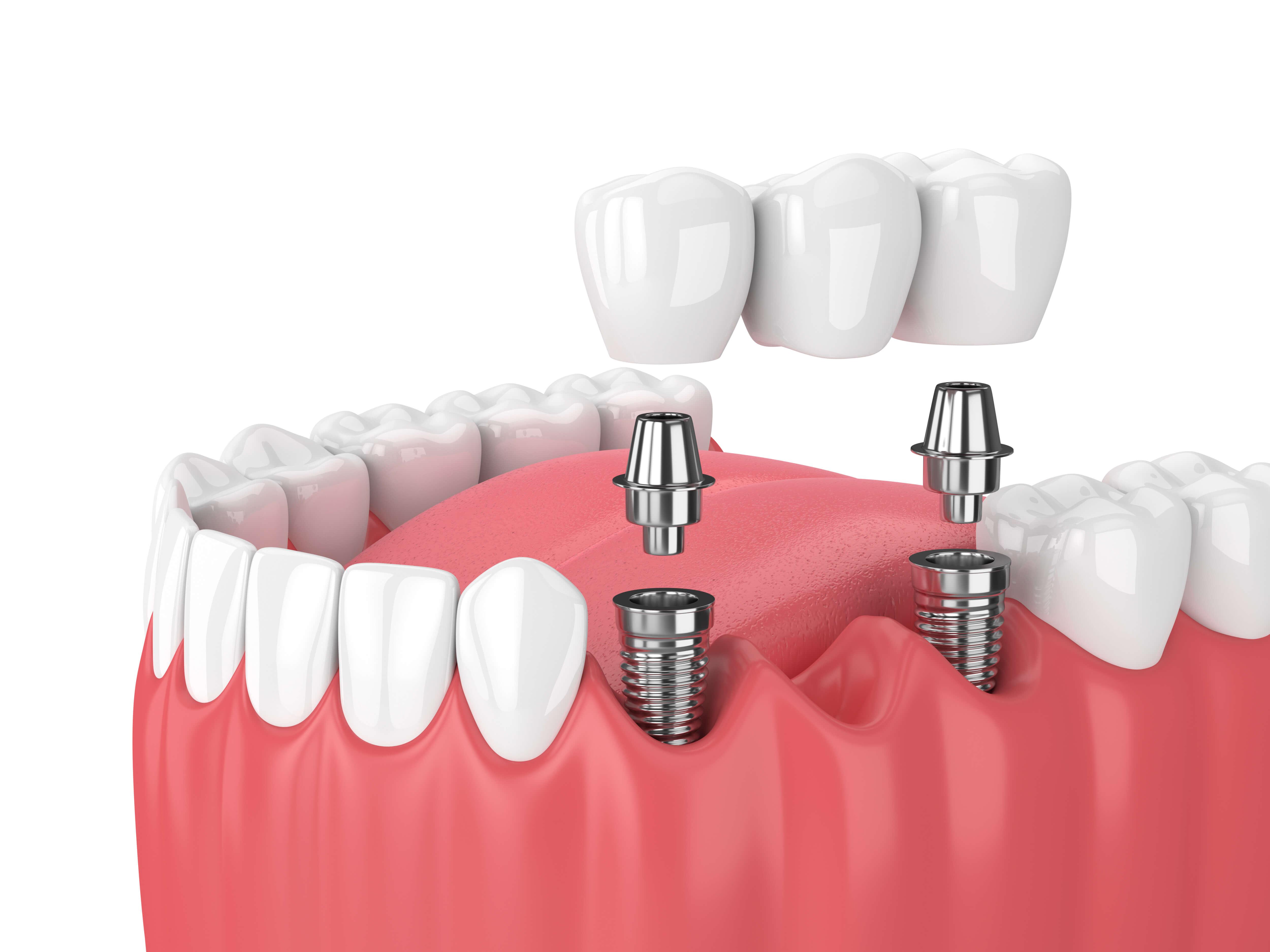 Dental Implants Glendive MT