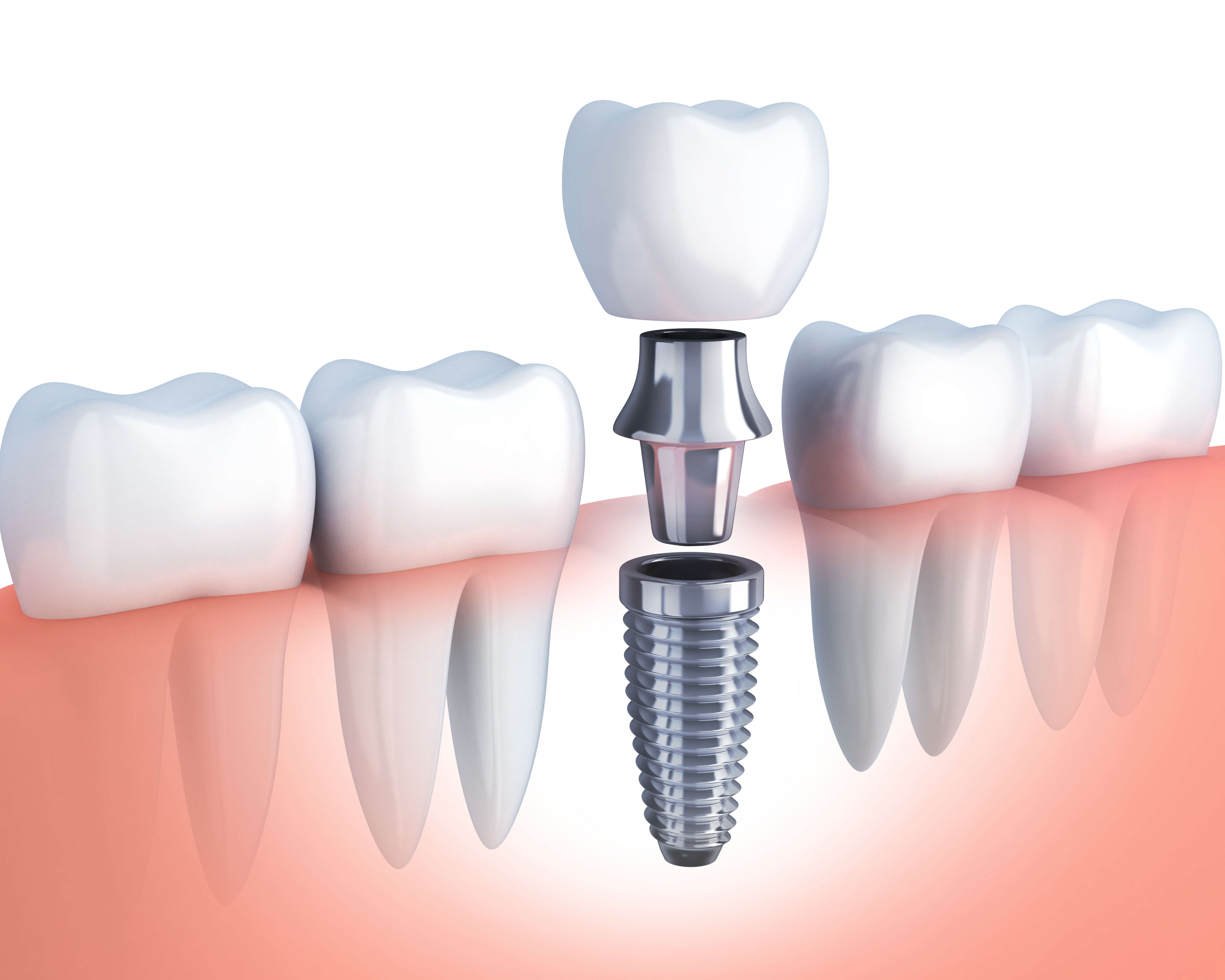 What to Expect During the Dental Implant Process