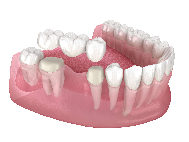What happens during the Dental Bridge Procedure
