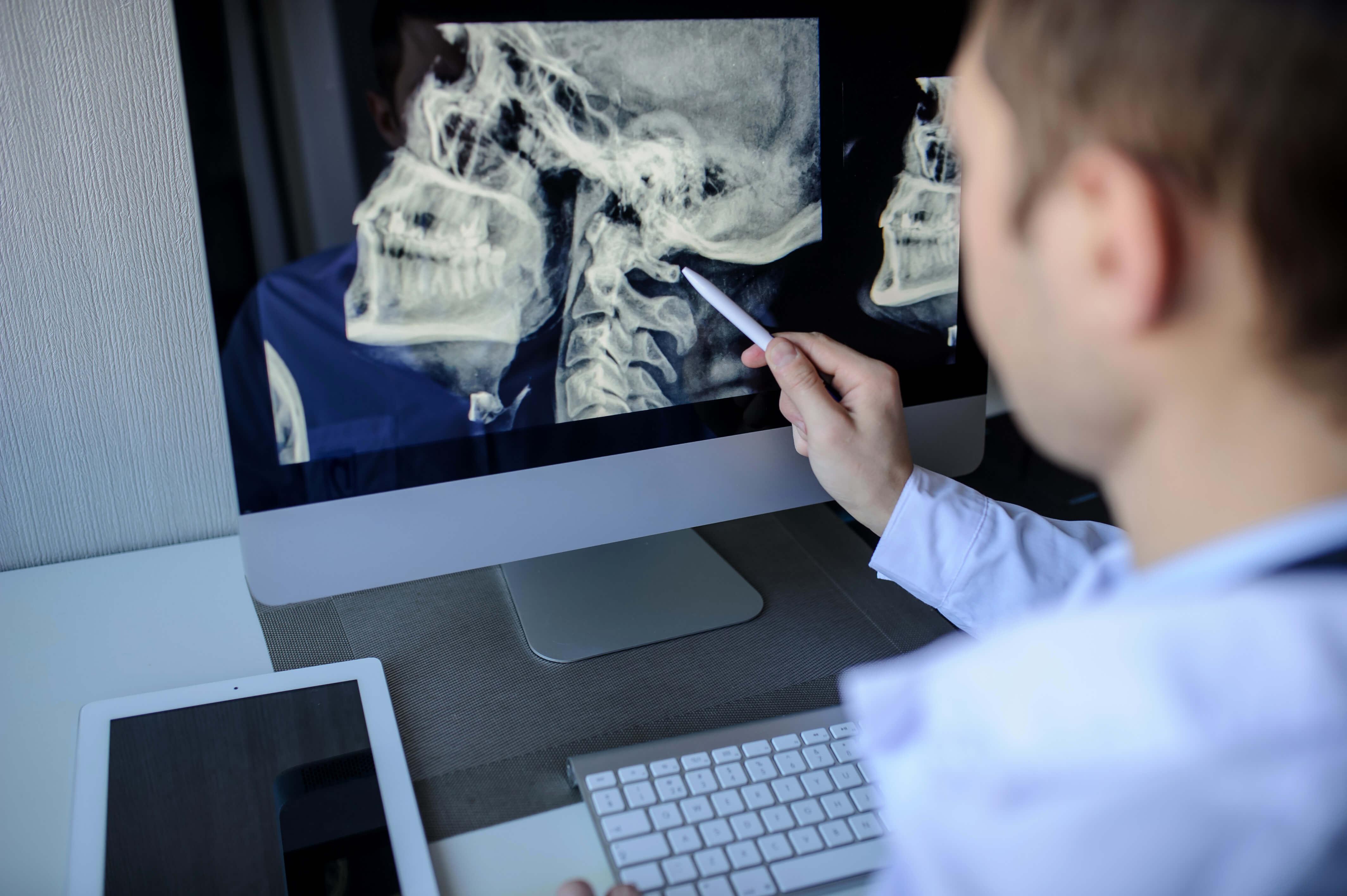 Benefits of Digital X-Rays