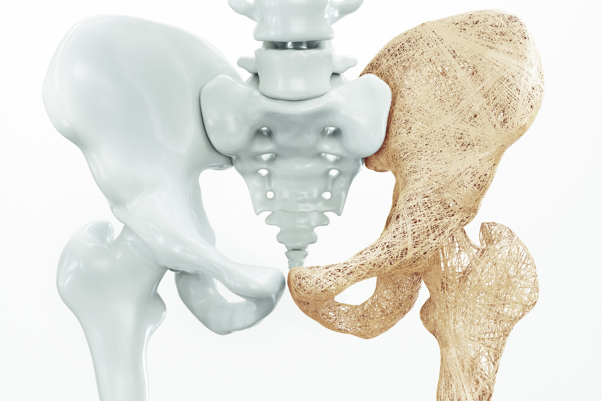 Osteoporosis is considered a 'silent' disease. That means there are no obvious signs or symptoms. However, as the disease advances, you may notice the following changes: