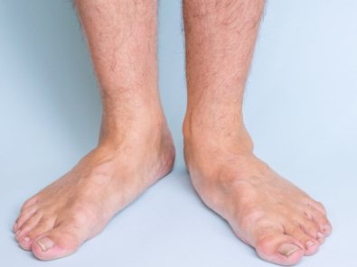 What's the deal with flat feet?