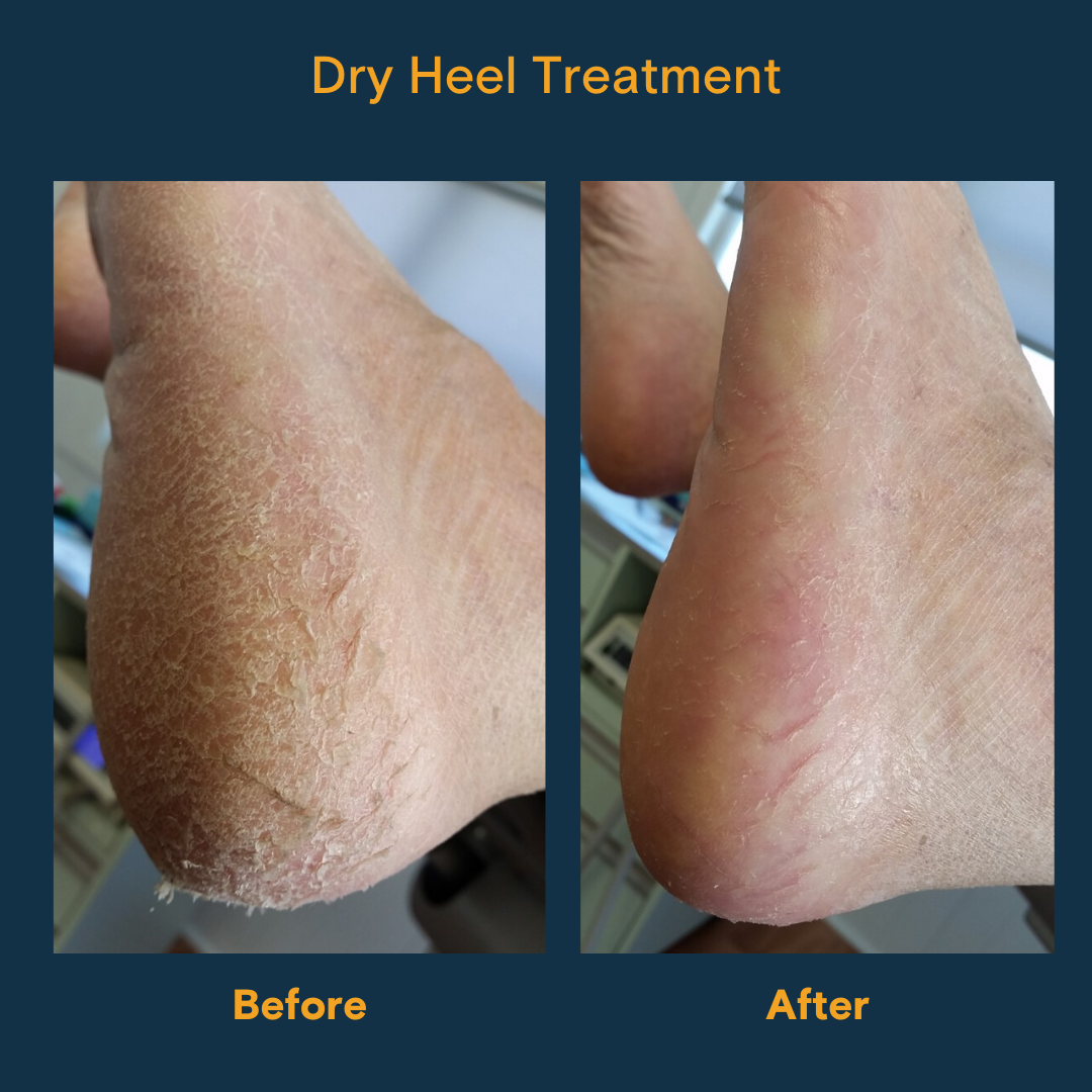 before and after images of a dry heel treatment