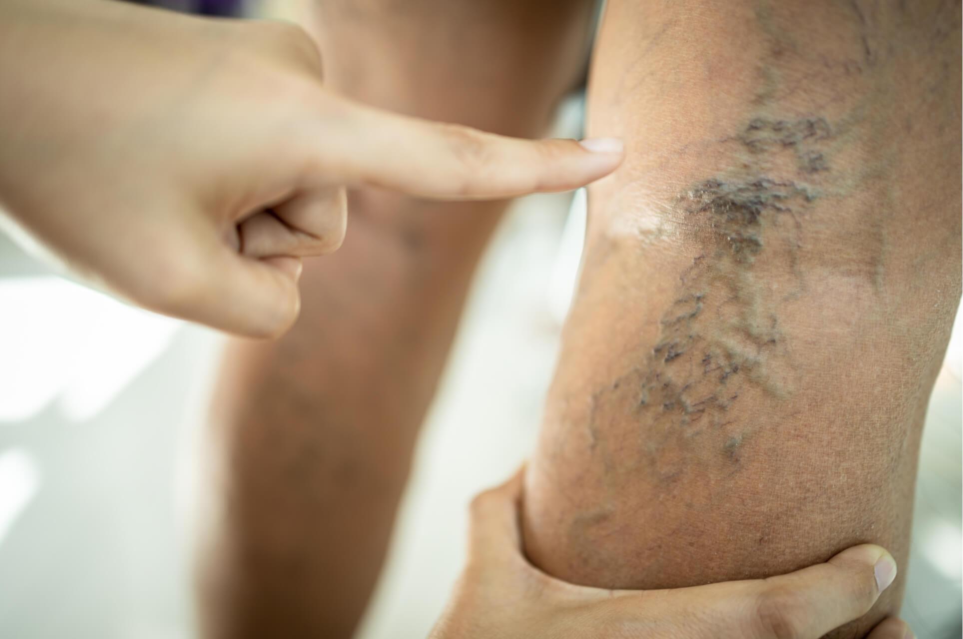Understanding the Key Stages of Vein Disease