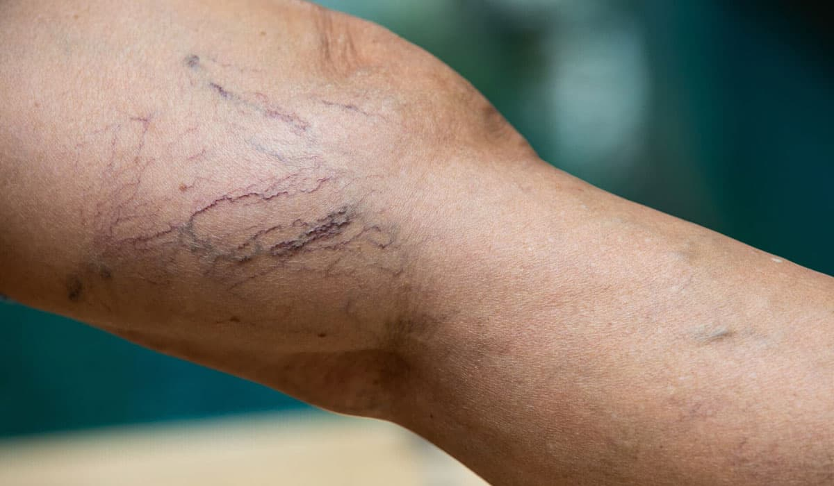 Ready for Your Varicose Vein Treatment? Here Are Some Tips to Get You Prepped