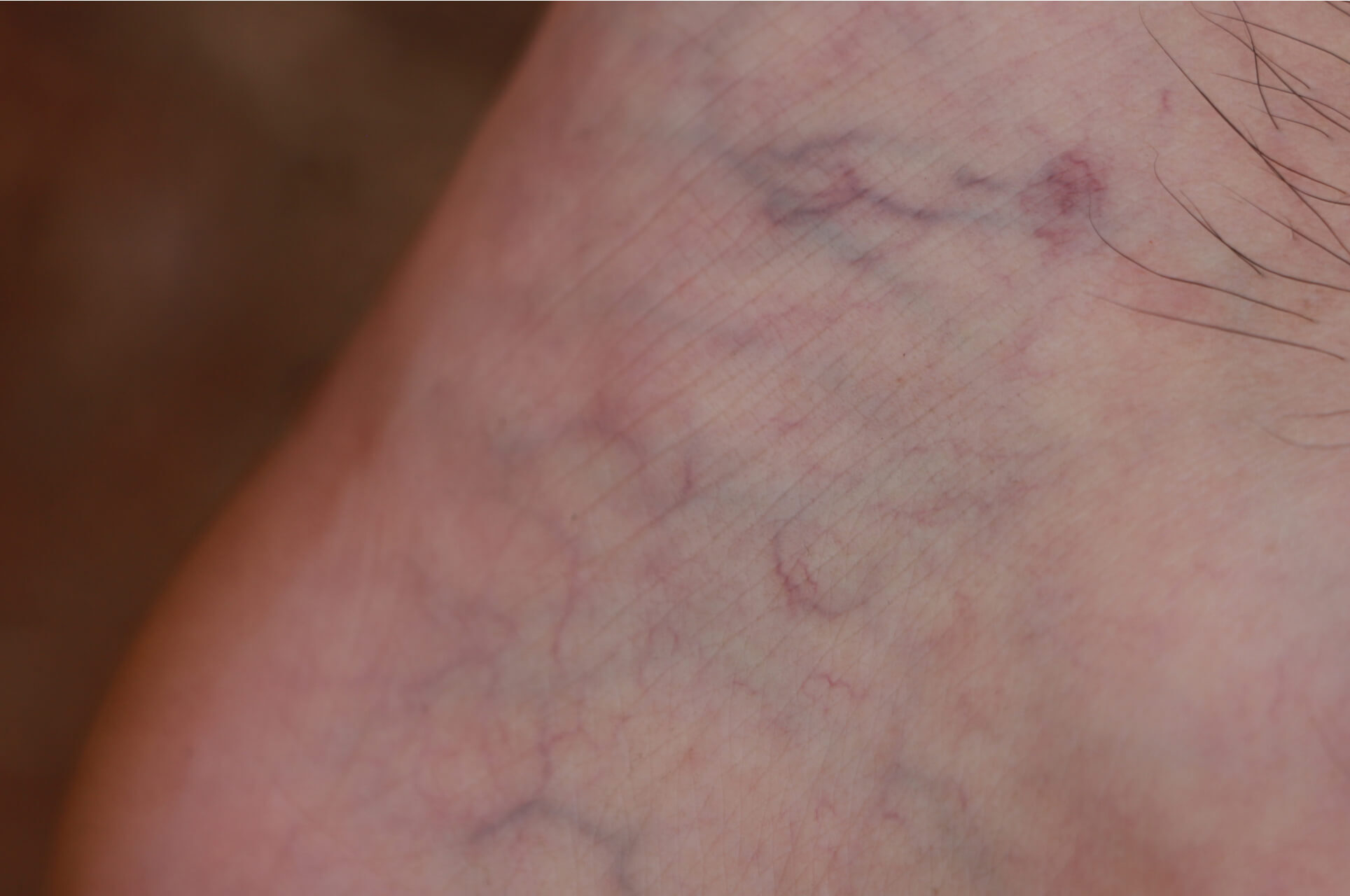 How To Prevent Spider Veins