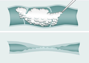 Illustration showing how sclerotherapy works at UK Vein Clinic